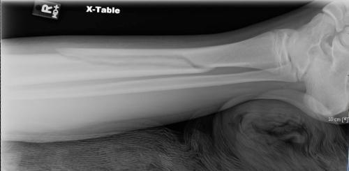 """""""broken leg"""""""